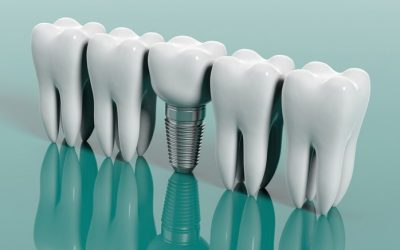 Los implantes dentales y sus beneficios