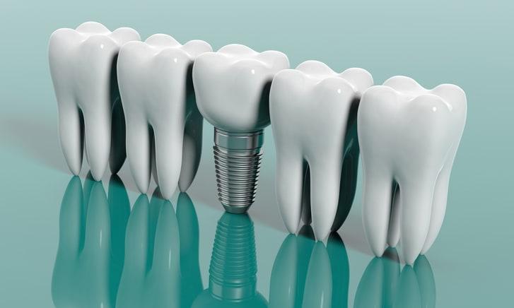 Los implantes dentales y sus beneficios