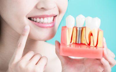 ¿Cuánto duran los implantes dentales y cómo puedo cuidarlos para darles más años?